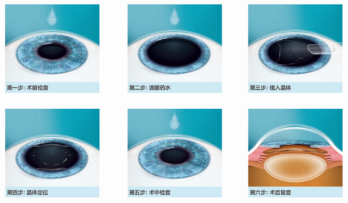 麦迪格眼科医院教你近视手术该选哪一种?